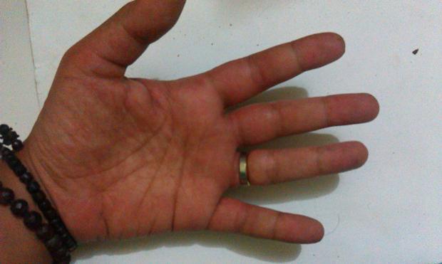 Jari-jarinya jadi lebih gemuk :')
